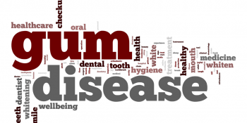 The Link Between Gum Disease and Your Overall Health